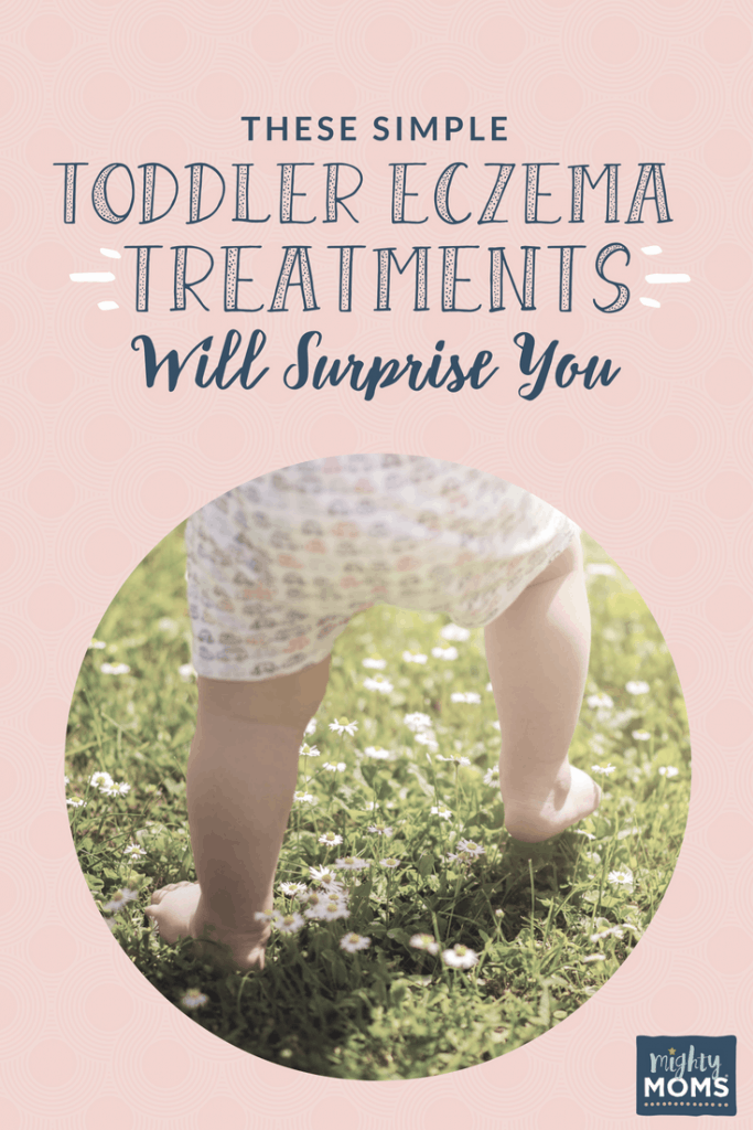 These Simple Toddler Eczema Treatments Will Surprise You