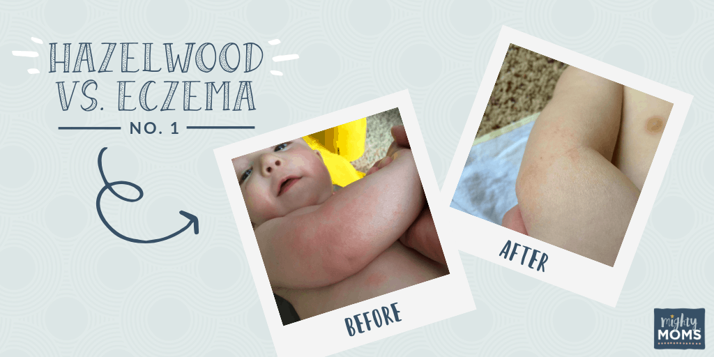Hazelwood as an Eczema Remedy #1 - MightyMoms.club