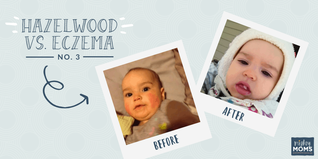 Hazelwood as an Eczema Remedy #3 - MightyMoms.club